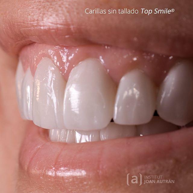 Carillas De Porcelana Qué Son Ventajas Duración Y Precios En El Blog De Institut Joan Autrán Link Carillas De Porcelana Carillas Dentales Diseños De Sonrisa