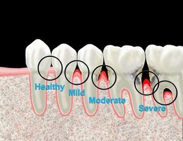 Stages of Periodontal Disease #GumDisease #PeriodontalDisease #Periodontist #DentalHygienist #RegisteredDentalHygienist #RDH #Dentist # Periodontal