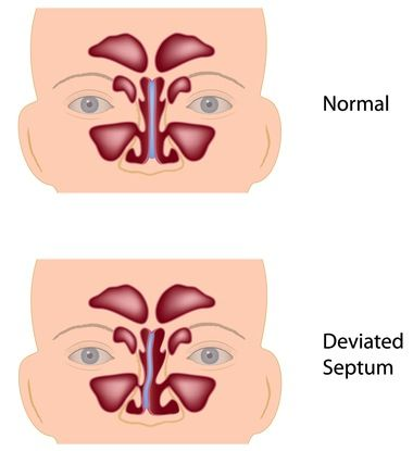 Image result for septal deviation