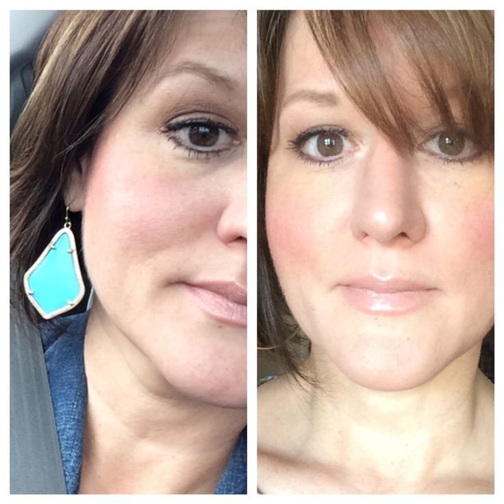 After three months of using Luminesce cellular rejuvenation serum, a medical-grade skincare with over 200 growth factors from adult stem cells, formulated by Beverly Hills dermatologist and cosmetic surgeon Dr. Nathan Newman.