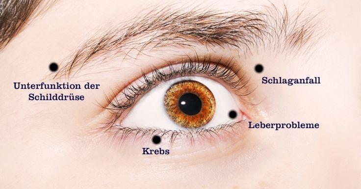 12 Dinge, die deine Augen über deine Gesundheitverraten