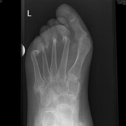 This  friends  is a bunion  Do your later self a favor now and wear    Xray Foot Bunion