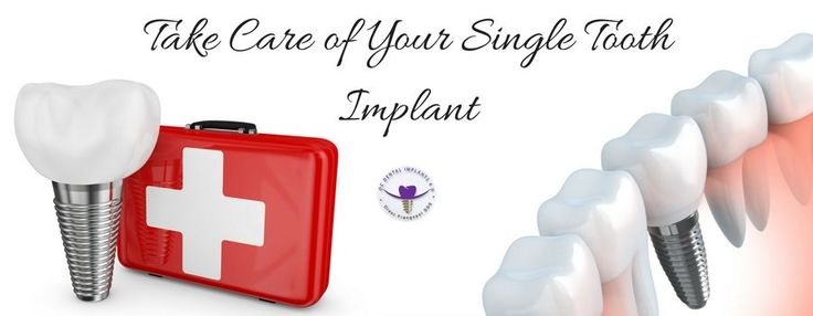 learn how to take care for your single tooth implant. #OCDentalImplants