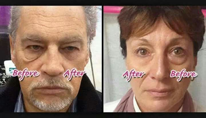 This incredible Product Instantly Ageless makes you look 10 years Younger in just 2 minutes. The results are shocking.   http://lovelieryou.jeunesseglobal.com/products.aspx?p=INSTANTLY_AGELESS