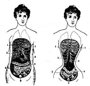 """Esta figura se consigue mediante aparatosos corsés metálicos (incluso añadiendo pequeñas almohadillas en las caderas y bajo los brazos para crear un efecto aún más exagerado de cintura de avispa) y da como resultado una figura de """"reloj de arena"""", concretamente en """"S"""", donde el pecho sobresale sobre una línea recta formada por un vientre plano y unas caderas completamente echadas para atrás en pro de un voluminoso trasero. Trajo consecuencias en la salud de muchas mujeres."""