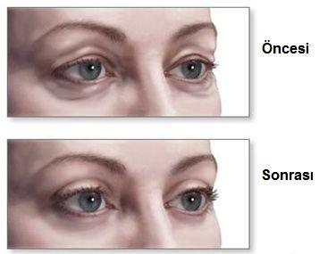 Başarılı bir estetik kapak ameliyatı nasıl olmalı?  - Göz kırpma fonksiyonu etkilenmemeli - Alt kapak dışa dönük veya aşağı çekik olmamalı - Göz yaşarmasına yol açmamalı (gözyaşı kanal ağzını etkilememeli) - Kaş hizasını aşağı düşürmemeli - Göz kapaklarının DOĞAL görünümünü bozmamalı!