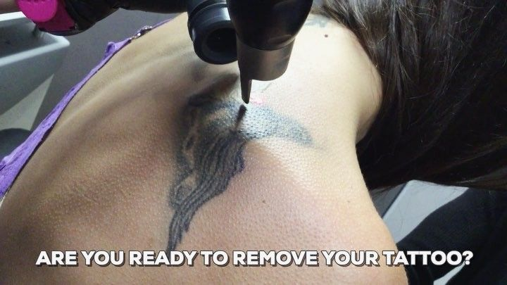 ARE YOU READY TO REMOVE YOUR TATTOO?  Contact #UnTattooU today! Our practice utilizes the #PicoSure Laser Tattoo Removal system, which provides exceptional results in less time than traditional tattoo removal lasers.  703.255.2600 www.UnTattooU.com  #lasertattooremoval #lasertreatments #tattooregret #tattooremoval #cynosure #lasertreatments #painfree #aesthetics #tattoos #inked #coveruptattoo #lightentattoos #inkedlife #inkedmagazine #procedure