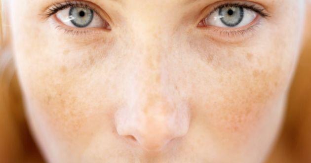 Kahverengi lekeler genellikle yüz, sırt, boyun, göğüs, omuzlar ve eller gibi güneşe maruz kalan alanlarında görülür, bunun dışında yaşlanma ve genetik faktörlerde kahverengi lekeler oluşturur. Cildiniz güneşe maruz kaldığında Melanosit hücreleri melanin üretimini arttırarak cilt renginizi koyulaştırır, bunun amacı güneşin zararlı ışınlarından vücudunuzu korumaktır. Fakat bu lekelerden bazıları soyulsanız dahiatılamaz ve kahverengi cilt yamaları olarak …