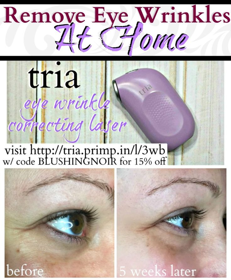 tria Eye Wrinkle Correcting Laser Review, Before & After Photos - click through to read more about the experience and score a COUPON CODE! #ad #PrimpTriesTria