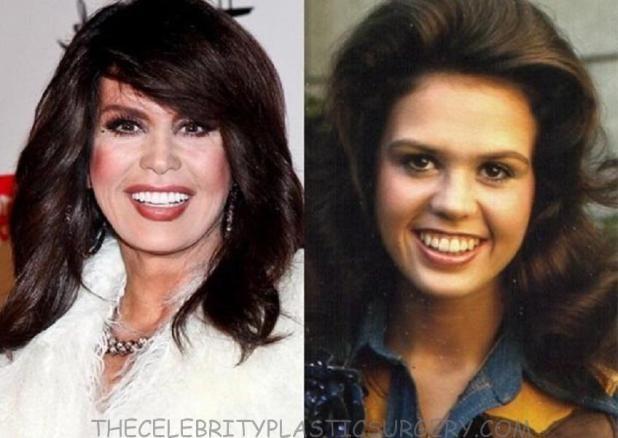 marie osmond plastic surgery facelift