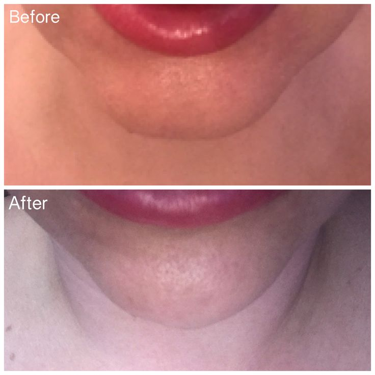 Let's talk about CHINS..🤔  • Square jaws can be beautifully sculpted..  • Drooping chins can be lifted and tightened..  • Cleft chins are no more..  www.aesthetica-medispa.co.uk  #chinworld #chinaugmentationbirmingham #chinenhancement #chinfillerbirmingham #makemepretty #loveyourchin #beauty #confidence #contour #dermalfiller #juvederm #louisefitzpatrick #chinspecialist #aestheticabirmingham