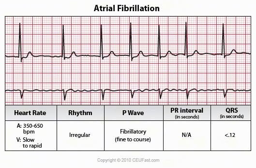 the causes and characteristics of arrhythmiaor irregular heartbeat Arrhythmias and slow heartbeat (84 causes) arrhythmias and movement symptoms (78 causes) this article throws light the causes and characteristics of arrhythmiaor irregular heartbeat on the various symptoms of arterial blockage in the heart.