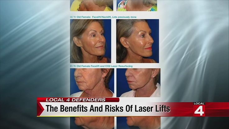 Defenders investigate new laser face-lift | News  - Home