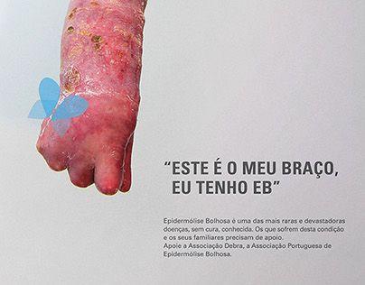 """Check out new work on my @Behance portfolio: """"Campanha de sensibilização Debra…"""