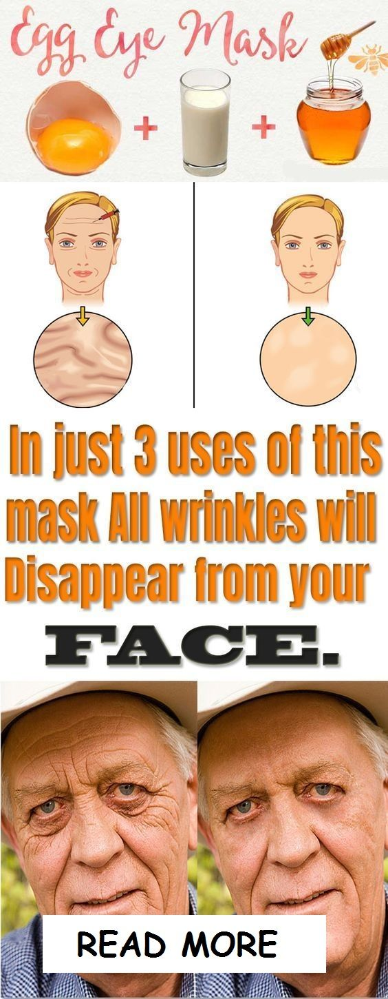 Re piercing nose scar tissue  Best  face images on Pinterest  Face masks Beauty tips and