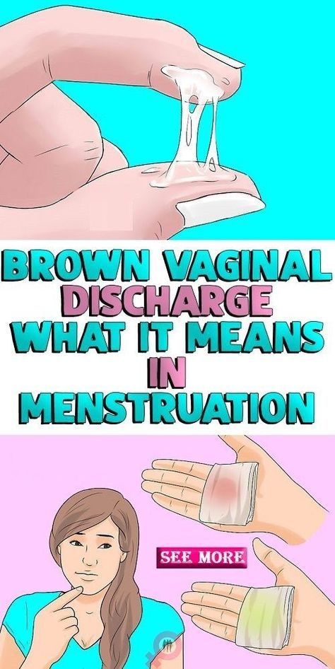 Brown Discharge/Spotting Before a Period: What Does it Say