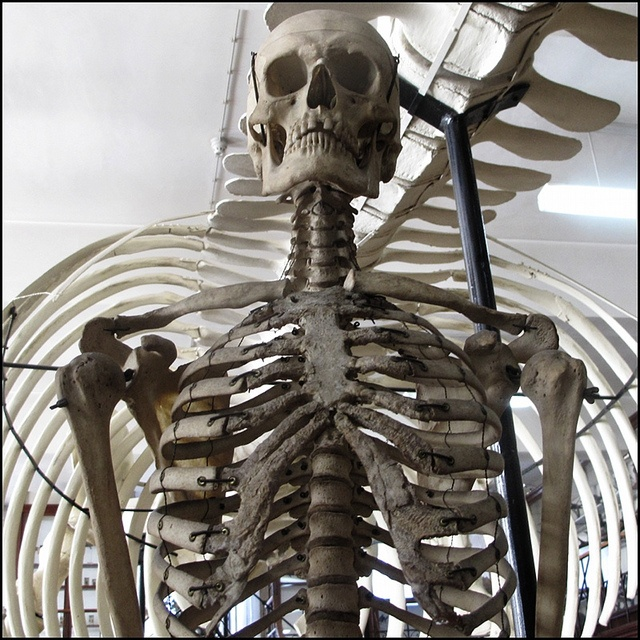 17 best images about skeletons on pinterest | richard iii, human, Skeleton