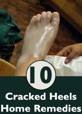 Home Remedies For Cracked Heels I seriously JUST told my sister if she wanted i could find a recipe like this on Pinterest for us today! Wow. Thank you Pinterest. I will never ever doubt u.