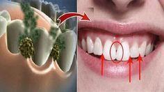 ¡Elimine el mal aliento en 5 minutos! Este remedio destruirá todas las bacterias que causan mal aliento.