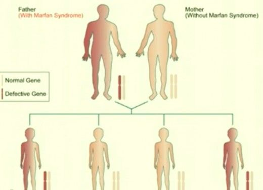 The signs and symptoms of Marfan Syndrome can vary from one person to the other. Check out pictures, causes, treatment and life expectancy of this genetic disorder