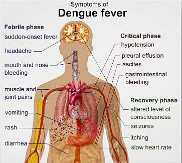 symptoms of dengue fever. Supposedly every missionary in Honduras will get it. Good info to be prepared.  - Kathy From Honduras - http://www.KathyFromHonduras.com