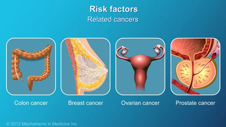 ...or other related cancers (such as colon, breast, ovarian and prostate cancer), also increase the risk. slide show: pancreatic cancer - signs, symptoms and risk factors. the focus of this slide show are the signs, symptoms and risk factors of developing pancreatic cancer.