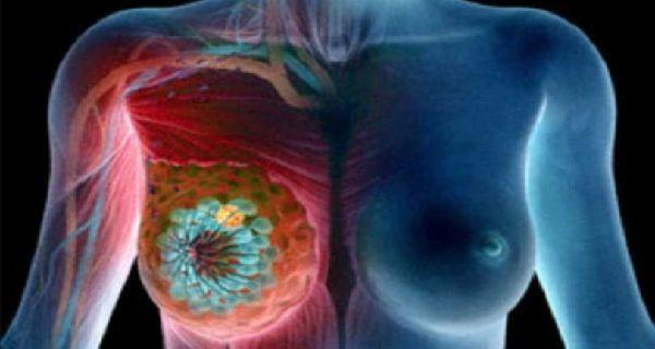Voici+les+principaux+facteurs+à+risque+qui+favorisent+le+développement+du+cancer+de+sein+: