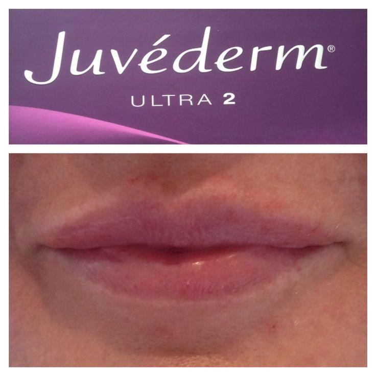 https://www.facebook.com/pages/Elxir-Aesthetics/657997570912440   Naturallooking lips  1/l Juvederm