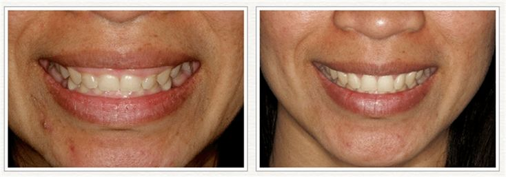 Gum surgery at bethesda dental implant center correcting