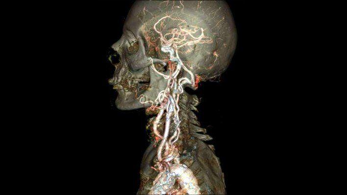 Gambar Foto Keakuratan Scanner CT merek GE terbaru
