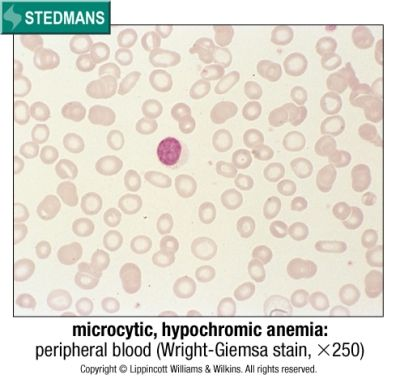 Microcytic, hypochromic anemia