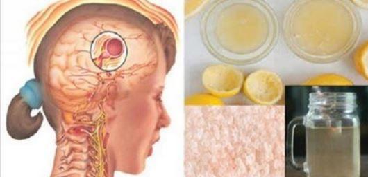 Boisson naturelle pour le traitement de la migraine: Elle disparaîtra en 10 minutes !