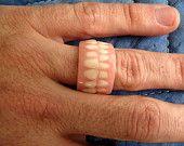 Anneau de prothèse dentaire