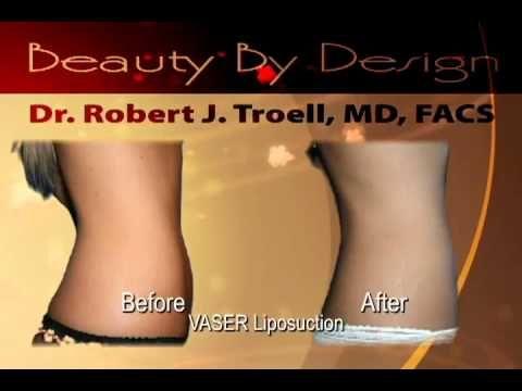 VASER Shape and VASER Liposuction with Dr. Robert Troell