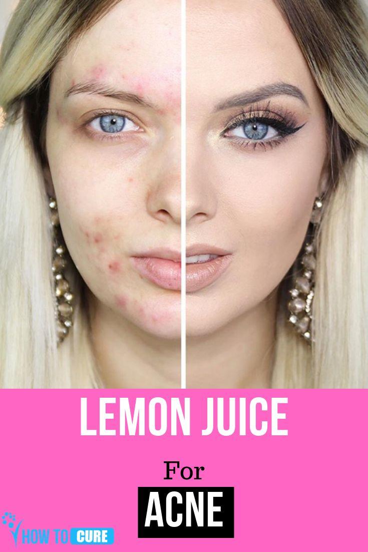 Lemon Juice for Acne – HowToCure