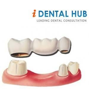 Average Cost Of Dental Bridge Dental Care Identalhub