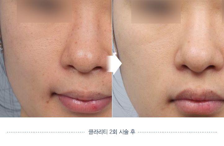 Clarify skin Before and after. Website: en.daprs.com #DApasticsurgery #plasticsurgery #koreaplasticsurgery #cosmeticsurgery #koreanbeauty #dermotolgy #skincare #skintreatment #clearskin #beautiful #koreanplasticsurgery #confident #beforeafter #beforeandafter #skinclarify #clarify