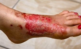 Skin burn injuries and burn wounds are common, with over one million burn injuries occurring every year in the United States. Skin burns can result from exposure to several possible sources, including hot water or steam, hot objects or flames, chemicals, electricity, or overexposure to the sun.