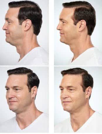 Kybella Treatment #doublechin #chin #beauty #kybella #treatment