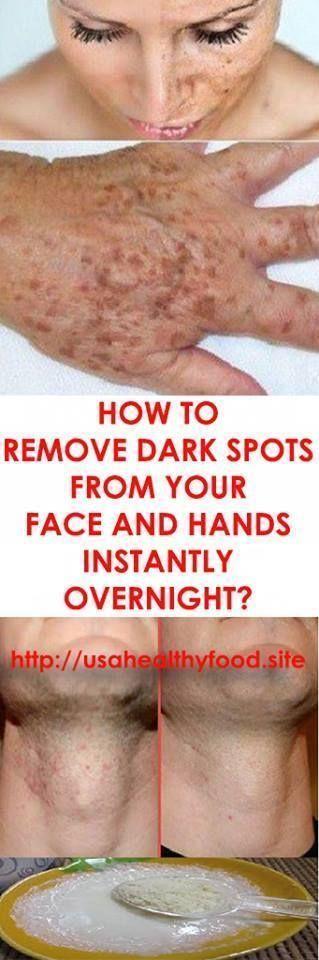 Dark Spots: How to Get Rid of Them – #Dark #darksp…