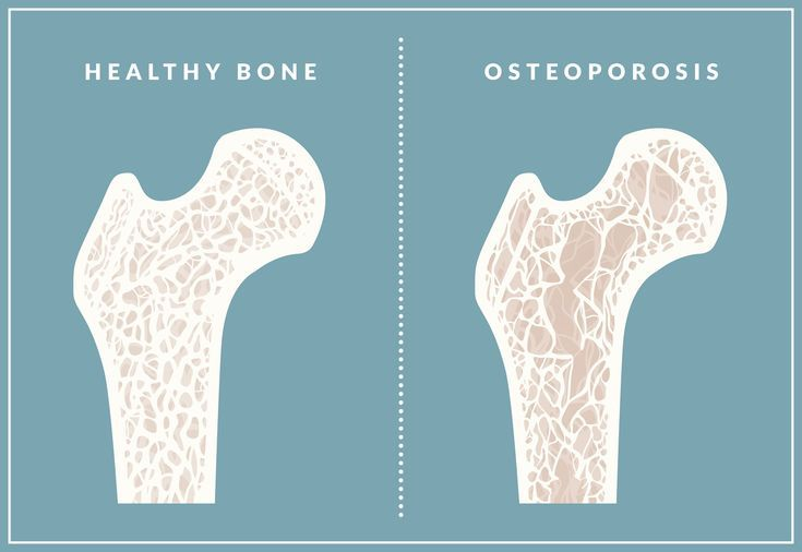 36+ How can osteoporosis be cured ideas in 2021