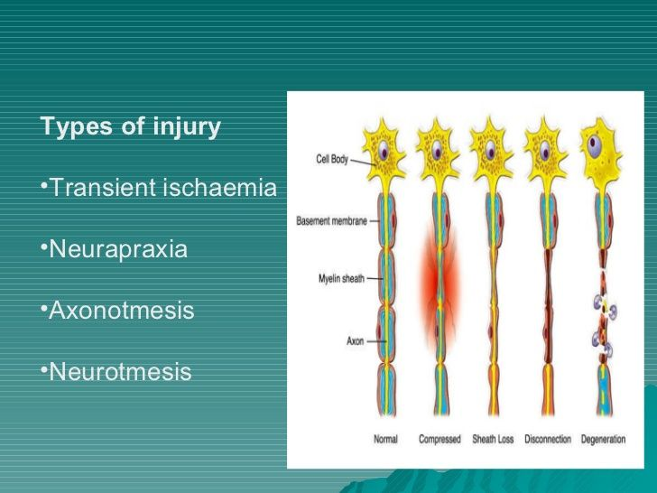 <ul><li>Types of injury </li></ul><ul><li>Transient ischaemia </li></ul><ul><li>Neurapraxia </li></ul><ul><li>Axonotmesis ...