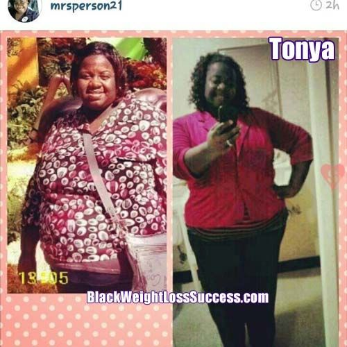 Summer, mgb weight loss surgery the person