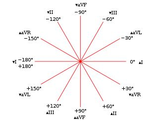 Con este video y resumen aprender a calcular el Eje Cardíaco te resultara muy fàcil