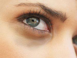 A karikás szem kezelése házilag!