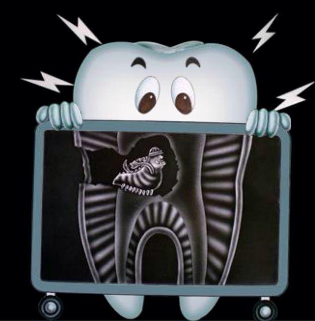 Radiografía dental.  Tijuana Dental Spa.   Recuerda...... que la limpieza dental es dos veces al año. Agenda tu cita hoy (664)685.00.58