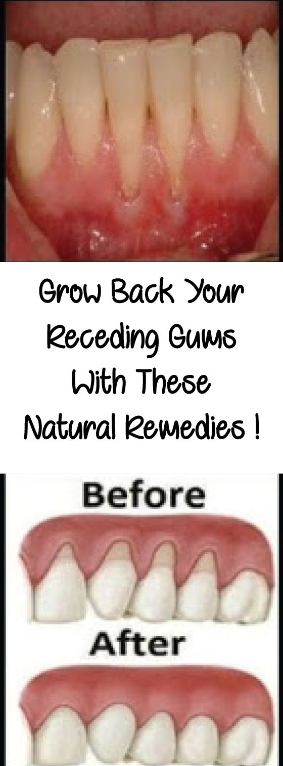 If you are experiencing receding gums then you have found a great article to read. In this article you will find 9 of the best home natural remedies to help grow back your receding gums. Your gums are not something you should ignore, especially if you are noticing some problems like receding