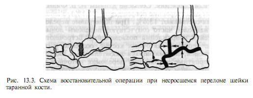 Перелом костей стопы обувь спб