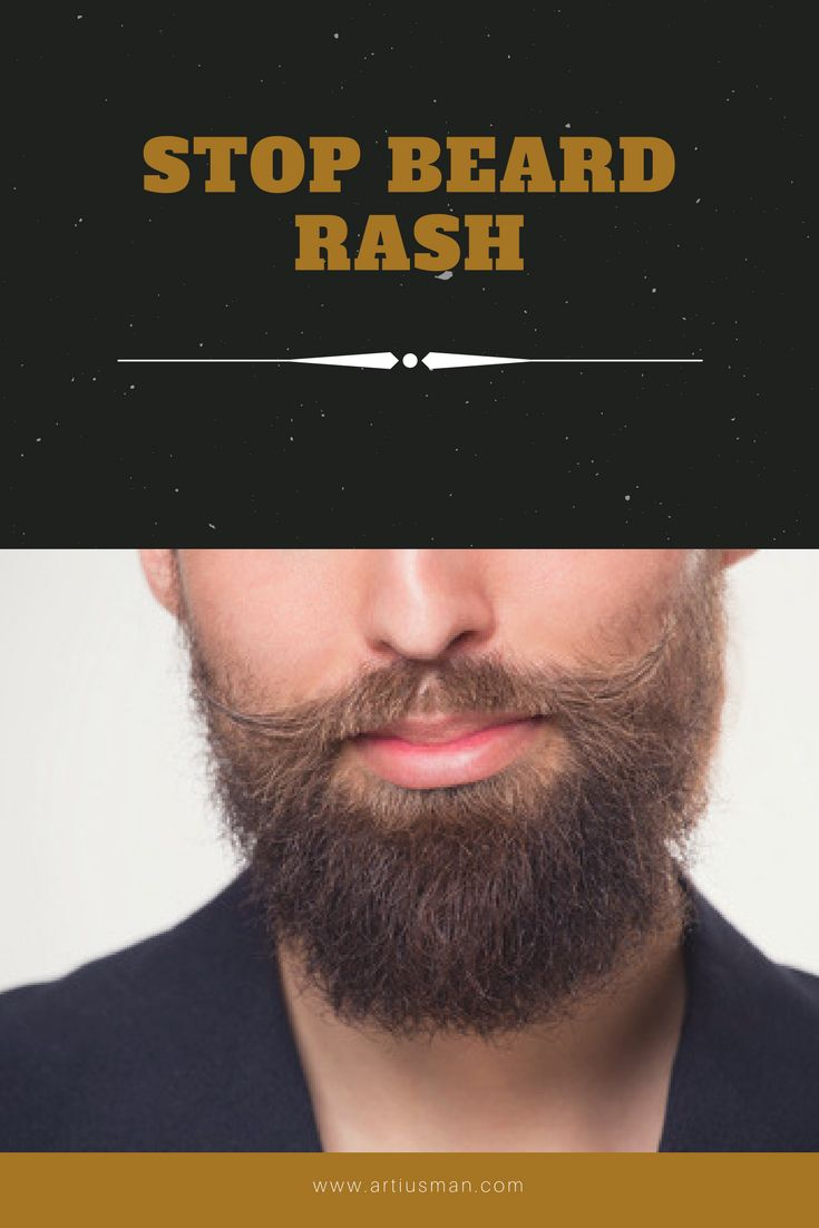 This is a quick, practical guide to stopping beard rash for good.