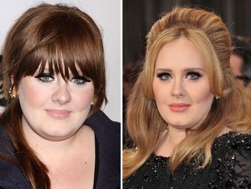 Adele Nose Job Plastic Surgery Before And after Pictures, Controversy